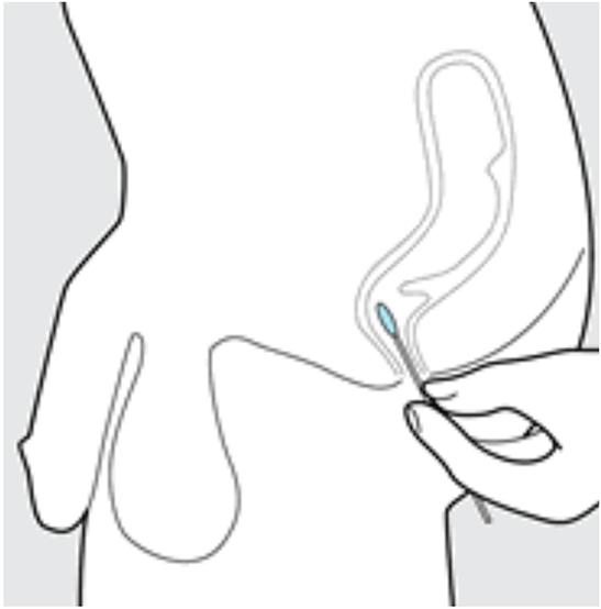 Rectum diagram